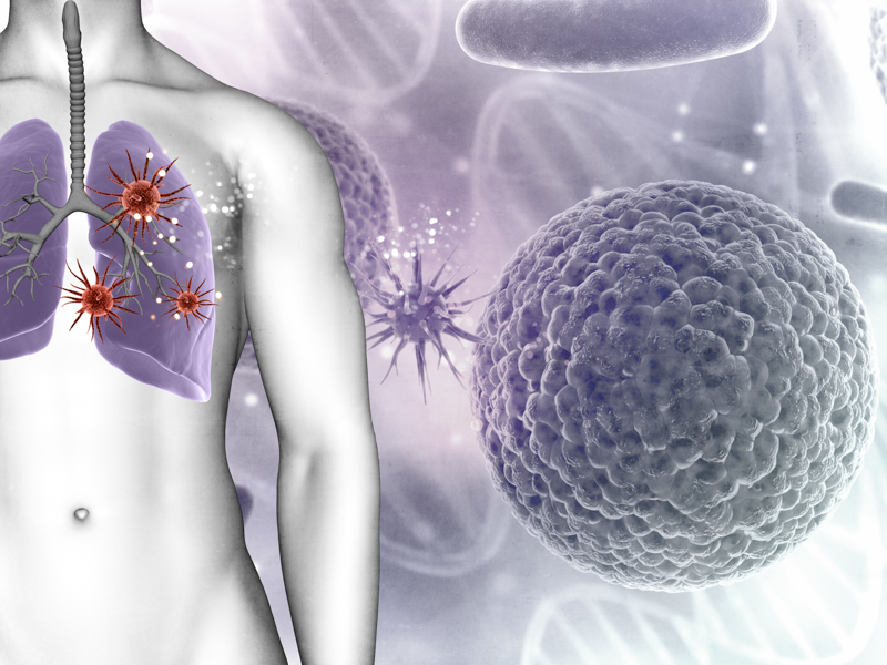Lung Microbiota Predict Clinical Outcomes in Critically Ill Patients